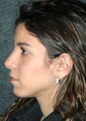 Rhinoplasty - Patient 14 - Lateral Left - After