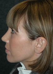Rhinoplasty - Patient 10 - Lateral Left - After