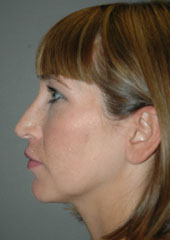 Rhinoplasty - Patient - Lateral Left - Before