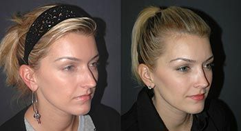 Rhinoplasty Before and After New York