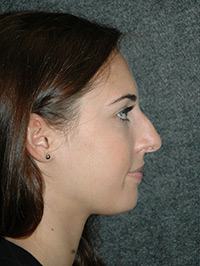 Rhinoplasty - Patient 1 - Lateral Right - Before