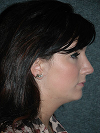 Rhinoplasty - Patient - Obl Right - After