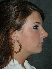 Rhinoplasty - Patient 11 - Obl Right - Before