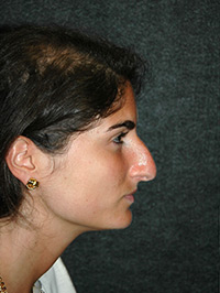 Rhinoplasty - Patient 9 - Lateral Right - Before