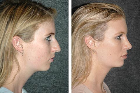 Rhinoplasty Before and After Rhinoplasty Recovery