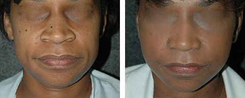 african american rhinoplasty before after new york