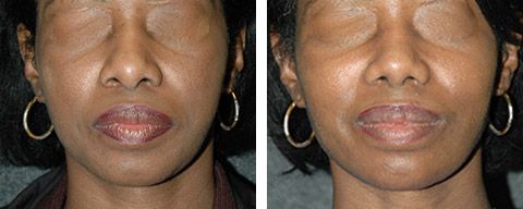 african american rhinoplasty before after photos