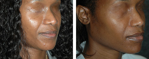 african american rhinoplasty patient photos nyc