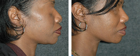 african american rhinoplasty patient photos