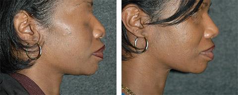 african american rhinoplasty patient photos