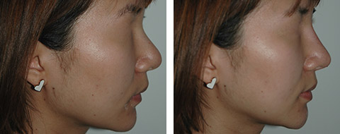 asian non surgical rhinoplasty before and after photos nyc