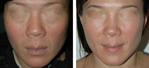 asian rhinoplasty before and after photos new york