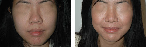 asian rhinoplasty before and after photos