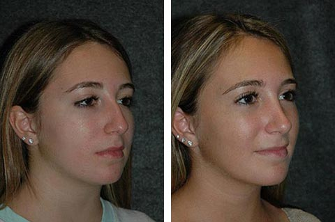 Best Before and After Closed Rhinoplasty Photos