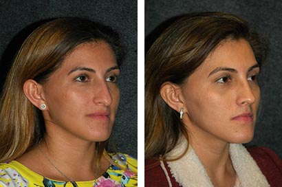 Before and After Closed Rhinoplasty Photos