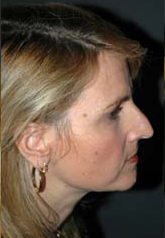 Rhinoplasty - Patient 21 - Lateral Right - Before