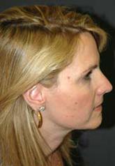 Rhinoplasty - Patient 21 - Lateral Right - After