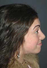 Rhinoplasty - Patient 23 - Lateral Right - After