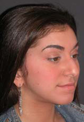 Rhinoplasty - Patient 23 - Obl Right - Before