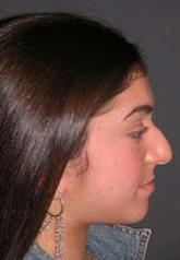 Rhinoplasty - Patient 23 - Lateral Right - Before