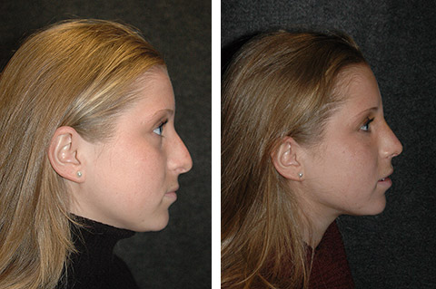 best closed rhinoplasty surgery results