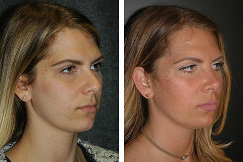 best eastern european rhinoplasty surgeon dr jacono