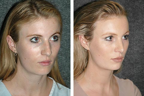 best eastern european rhinoplasty surgeon results dr jacono