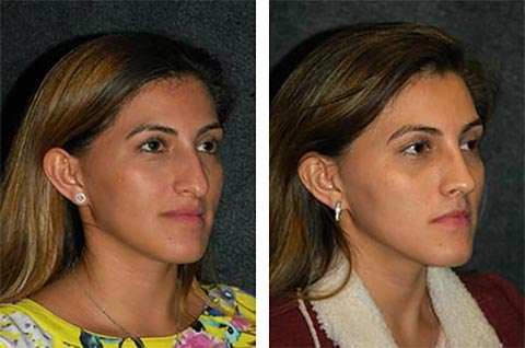 best hispanic rhinoplasty surgeon in the world results