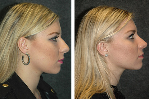 Best Open Rhinoplasty Surgeon New York