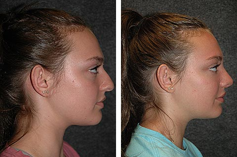 best rhinoplasty surgeon before after dr jacono