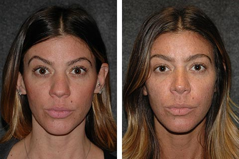 best rhinoplasty surgeon dr jacono before after photos