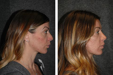 best rhinoplasty surgeon dr jacono before after