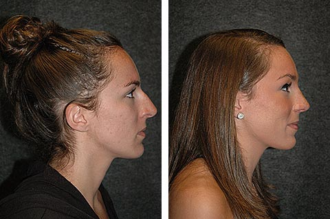 best rhinoplasty surgeon dr jacono new york city