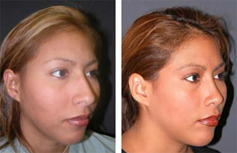 best rhinoplasty surgeon in the world photos