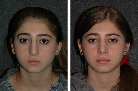 closed rhinoplasty before after photos front