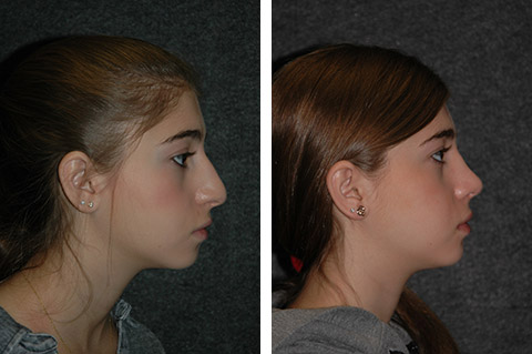 teen rhinoplasty before after photos profile