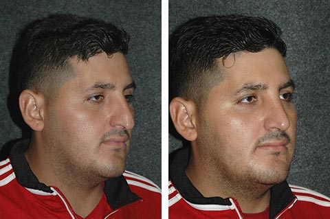 hispanic rhinoplasty before and after patient photos