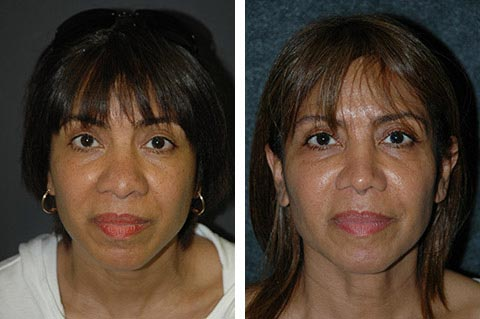 hispanic rhinoplasty before and afters new york