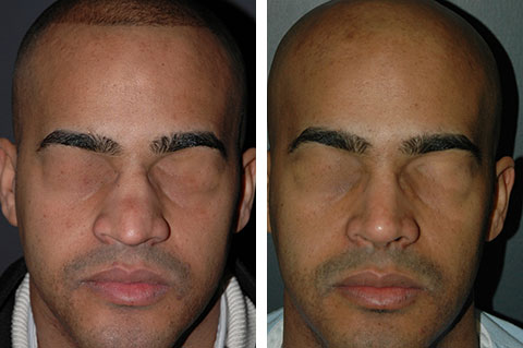 male hispanic rhinoplasty before and after photos