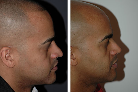 male hispanic rhinoplasty before and afters