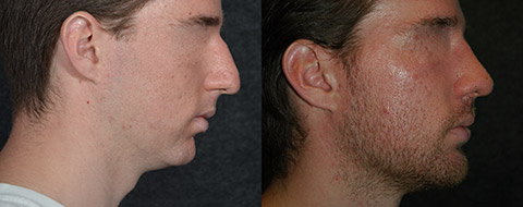 Male Nose Job with Chin Augmentation