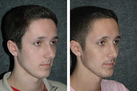 Male Nose Job Later View