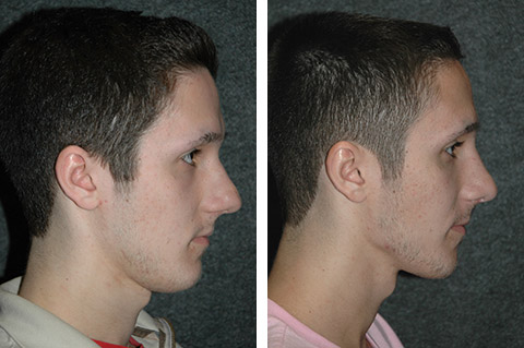 Male Nose Job Profile Photo