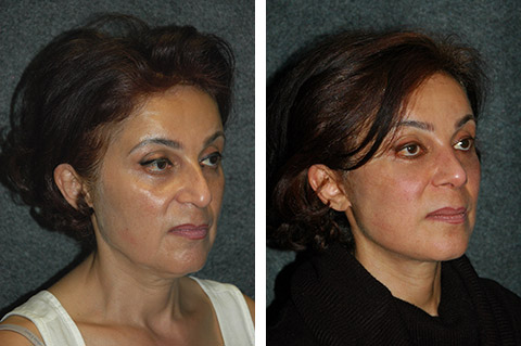 Middle Eastern Rhinoplasty Before and After Photos