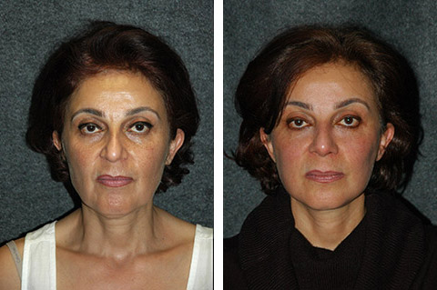 Middle Eastern Rhinoplasty Photos