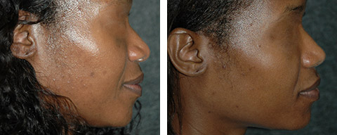 new york african american rhinoplasty patient photos