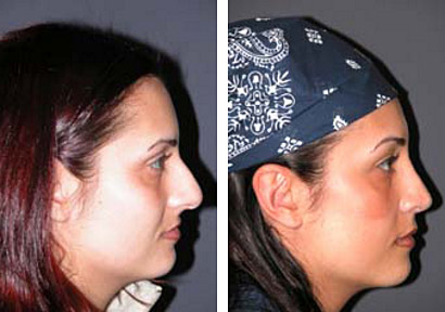 new york rhinoplasty female patient photos