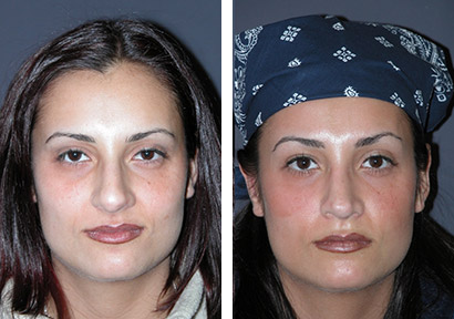 new york rhinoplasty patient photos