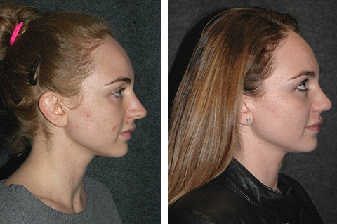 open rhinoplasty before and after lateral pics