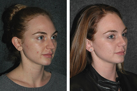 open rhinoplasty before and after pics